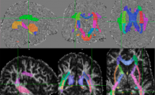 Diffusion tensor imaging of the brain.